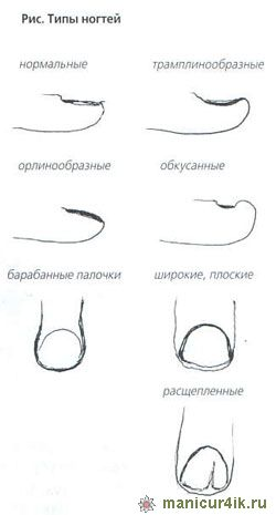Как сделать форму ногтей на дому